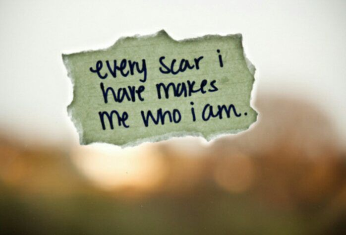 Repost:  Displaying Our Scars