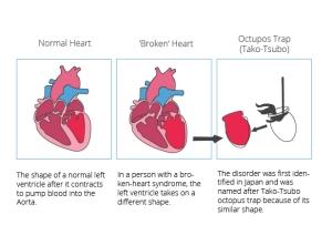 Broken_Heart_syndrome_EN-01